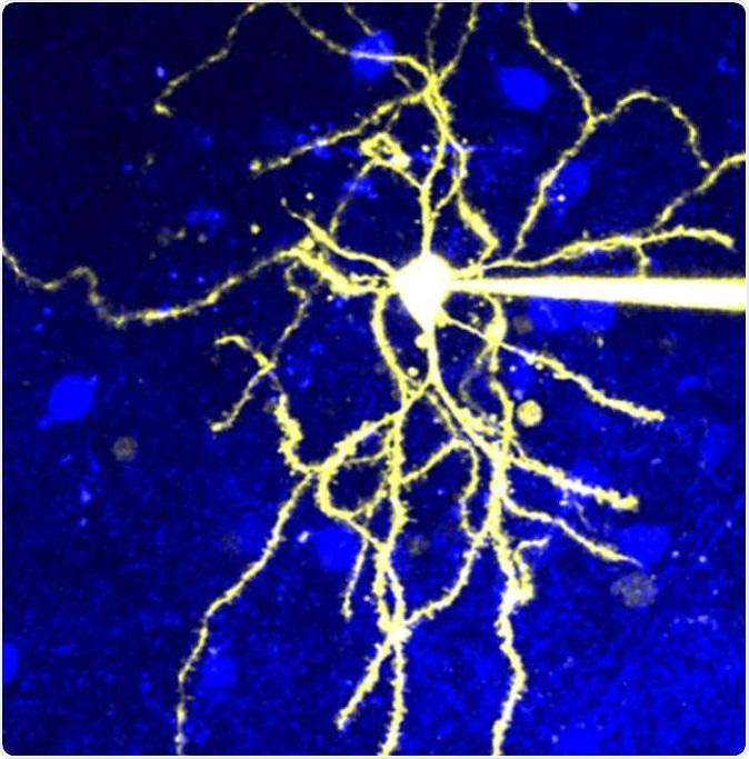 Microscopic image of a neuron that expresses D2R. Image Credit: © 2020 Yagishita et al.