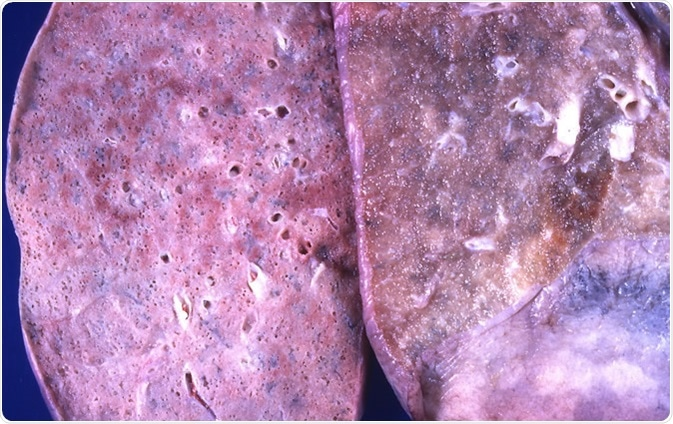 Diffuse alveolar damage (DAD) The lung on the left is diffusely consolidated and pale in appearance. The lung on the right is from another case; it exhibits no significant abnormality and is included for comparison