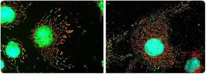 A imagem na esquerda mostra pilhas normais com as mitocôndria tubulares (vermelhas), e ADN (verde) no núcleo e dentro das mitocôndria. No direito, MxB foi removido por meios genéticos e pelas mitocôndria fragmentadas as folhas (vermelhos) com seu genoma deslocado no citoplasma. Crédito de imagem: Clínica de Mayo