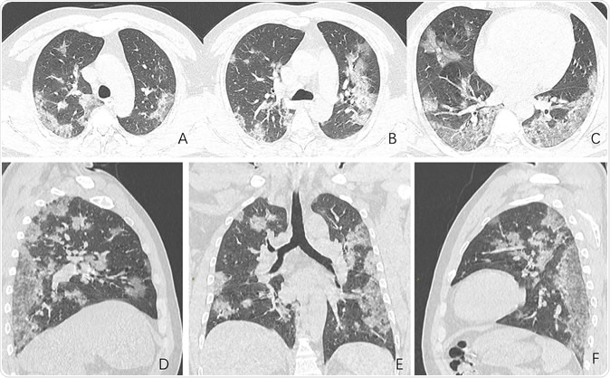 Images in a 44-year-old man who presented with fever and suspected COVID-19 pneumonia. A-C, Thin-slice (1-mm) axial CT images showed multiple patchy ground-glass opacity along the peribronchial and subpleural lungs. Some reticular opacities were also found within areas of ground glass (crazy-paving pattern). Lymphadenopathy was absent. D-F, Multiplanar reconstruction showed diffuse distribution of lesions.