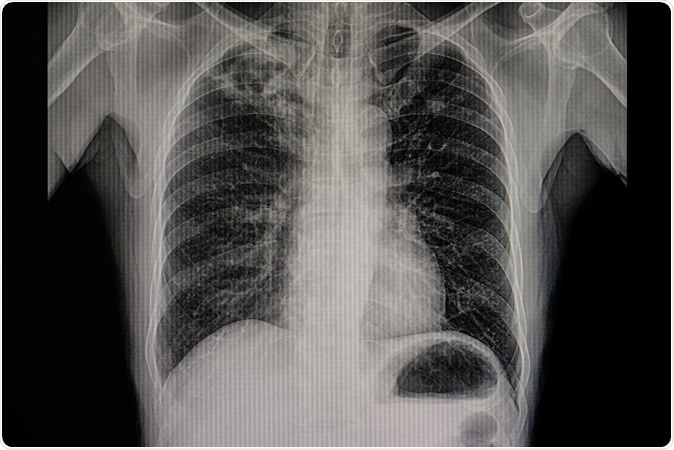 Xray film of a patient with active pulmonary tuberculosis with numerous cavitations and fibrotic change in the right upper lung. Infectious and contagious disease. TB communicable respiratory disease. Image Credit: Tomatheart / Shutterstock