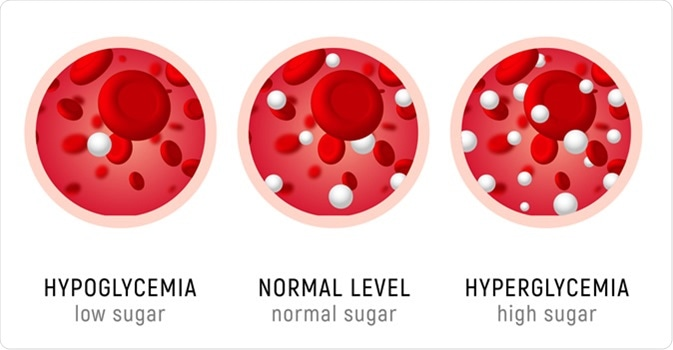 Diabetes insulin hypoglycemia or hyperglycemia diagram. Image Credit: Kolonko / Shutterstock