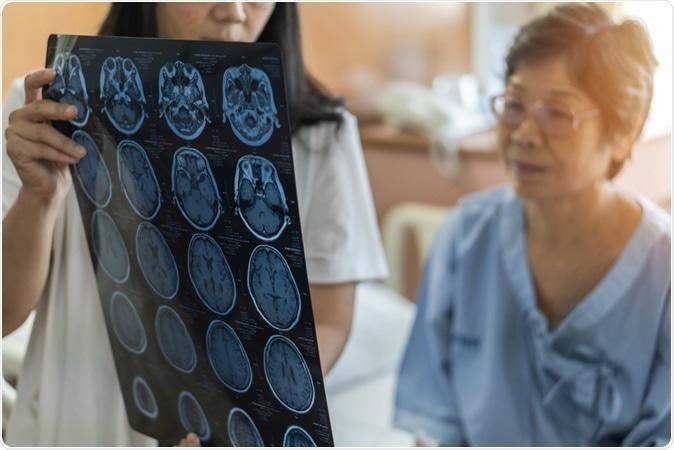 Associazione dei disordini In relazione con lo sforzo con le malattie successive di Neurodegenerative. Credito di immagine: Chinnapong/Shutterstock