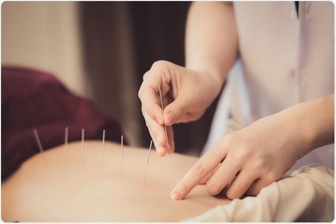 Acupuncture. Crédit d