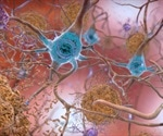 Molecular clues explain why some neurons are more susceptible than others in Alzheimer's disease