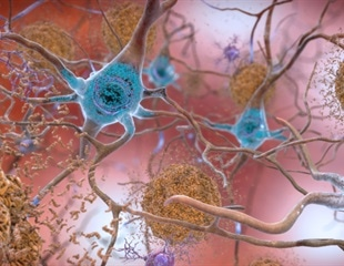 An integrated approach could pave the way for future control of Alzheimer's disease