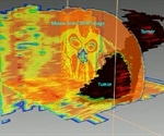 Using Spectral Imaging to Study Brain Tumors in 3D