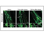Research shows how stress restructures the brain