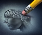 Potential genetic test for earlier Alzheimer's diagnosis