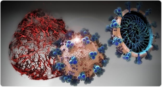 Nas culturas celulares analisadas no estudo actual, hrsACE2 inibiu a carga do coronavirus por um factor de 1,000-5,000. Crédito: IMBA/Tibor Kulcsar