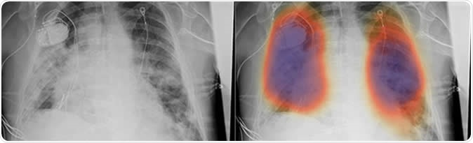 Chest X-rays from a patient with COVID-19 pneumonia, original x-ray (left) and AI-for-pneumonia result (right). Patient has a pacemaker device and an enlarged heart, which indicates that the AI algorithm is powerful enough to work even when the patient has underlying health issues.