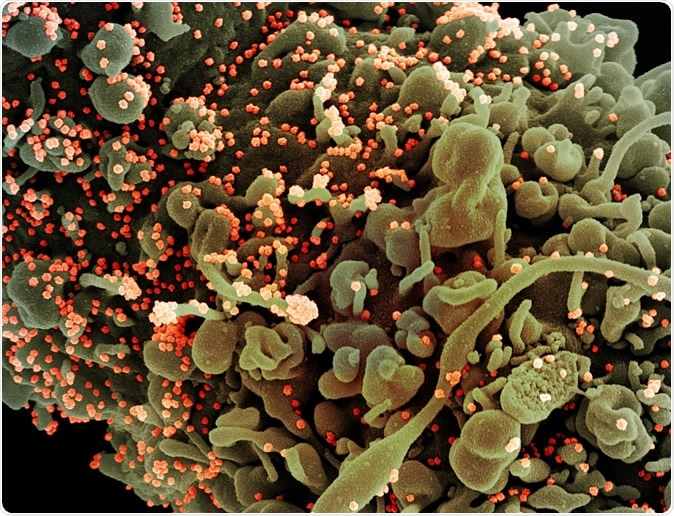 Novel Coronavirus SARS-CoV-2 - Colorized scanning electron micrograph of a cell showing morphological signs of apoptosis, infected with SARS-COV-2 virus particles (orange), isolated from a patient sample. Image captured at the NIAID Integrated Research Facility (IRF) in Fort Detrick, Maryland. Credit: NIAID