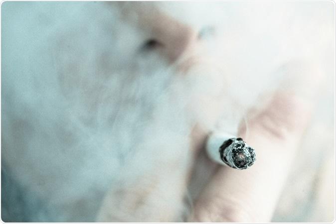 Study: Smoking is Associated with COVID-19 Progression: A Meta-Analysis. Image Credit: Wavebreakmedia / Shutterstock