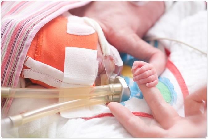 Étude : Configurations diététiques de Prepregnancy et risque de naissance avant terme et de poids à la naissance inférieur : découvertes de l