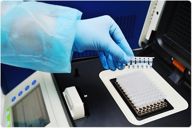 Study: Smart Pooled sample Testing for COVID-19: A Possible Solution for Sparsity of Test Kits. Image Credit: Evgeniy Kalinovskiy / Shutterstock