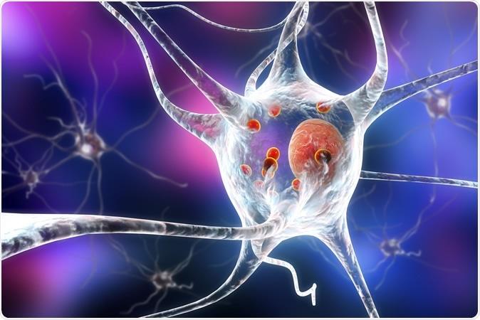 La enfermedad de Parkinson. ejemplo 3D que muestra las neuronas que contienen las carrocerías de Lewy pequeñas esferas rojas cuáles son depósitos de proteínas acumuladas en las neuronas que causan su degeneración progresiva. Haber de imagen: Kateryna Kon/Shutterstock
