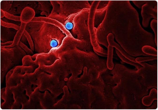Partículas de MERS-CoV de las partículas de MERS Coronavirus en las células epiteliales del camello. Haber: NIAID en colaboración con universidad de estado de Colorado