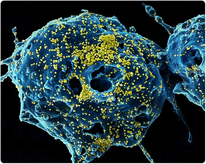 MERS Virus Particles Colorized scanning electron micrograph of Middle East Respiratory Syndrome virus particles (yellow) attached to the surface of an infected VERO E6 cell (blue). Image captured and color-enhanced at the NIAID Integrated Research Facility in Fort Detrick, Maryland. Credit: NIAID