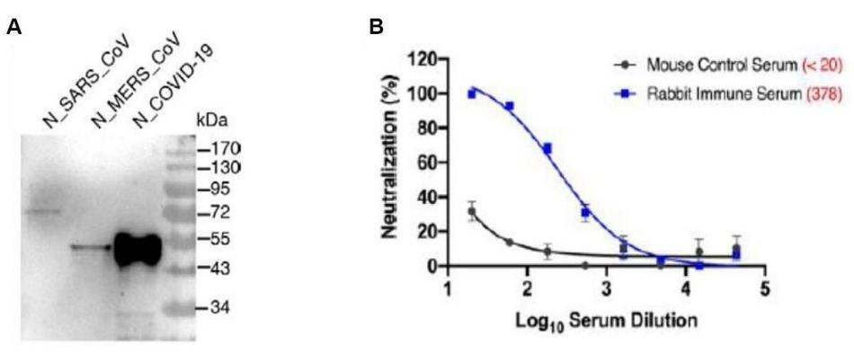 Coronavirus antibodies for research