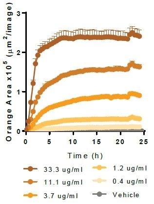 Myelin Basic Protein.