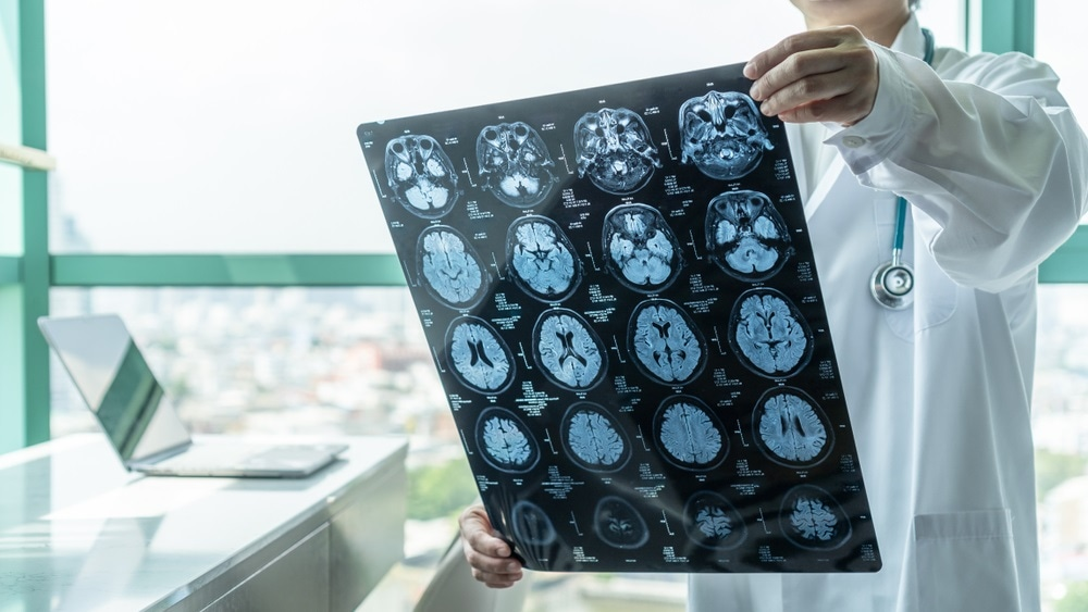 malattia neurologica