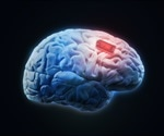 Researches implant ultrathin, flexible brain interfaces with long lifetimes