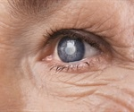 NEI researchers link age-related DNA modifications to susceptibility to eye disease