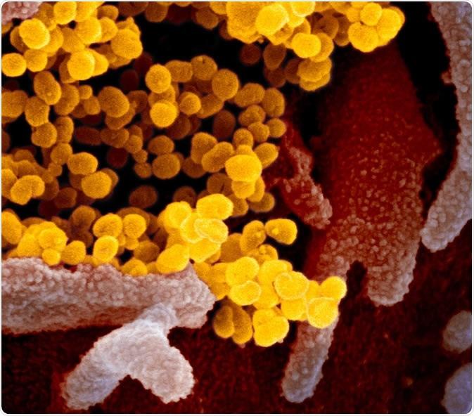 Nouveau cette image de microscope électronique de lecture du coronavirus SARS-CoV-2 montre SARS-CoV-2 (jaune) - également connu sous le nom de 2019-nCoV, le virus qui entraîne COVID-19-isolated d