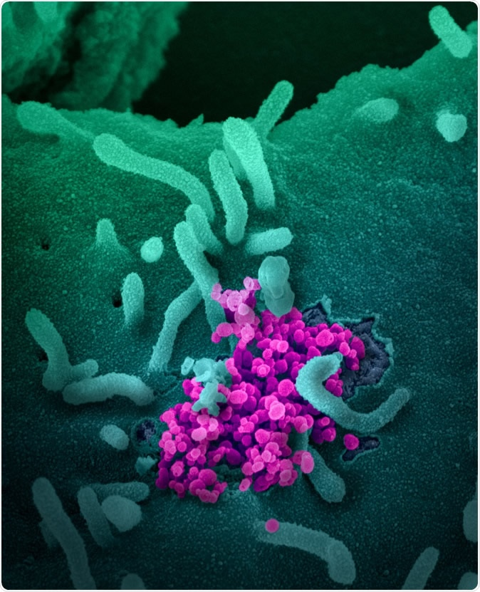 Novel Coronavirus SARS-CoV-2 This scanning electron microscope image shows SARS-CoV-2 (round magenta objects) emerging from the surface of cells cultured in the lab. SARS-CoV-2, also known as 2019-nCoV, is the virus that causes COVID-19. The virus shown was isolated from a patient in the U.S. Image captured and colorized at NIAID