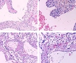 IL-6 blocker use in severe COVID-19 increases risk of secondary infections