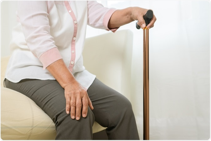 Study: Global, regional and national burden of osteoarthritis 1990-2017: a systematic analysis of the Global Burden of Disease Study 2017. Image Credit: BEAUTY STUDIO / Shutterstock