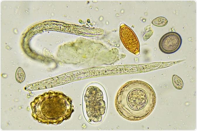 Mélangé des helminthes dans les selles, analysez au microscope. Crédit d