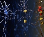 Neurodegeneration: Progressive Neuron Death