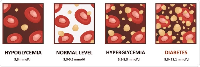 Glucose in the blood. Image Credit: logika600 / Shutterstock