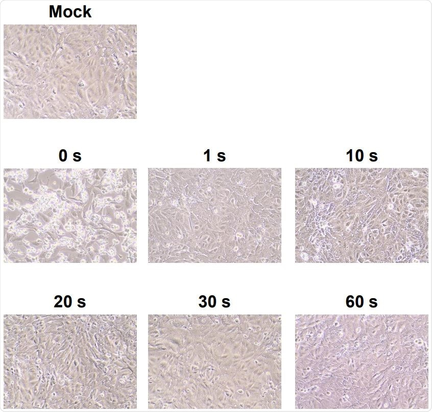 Cytopathic changes in virus-infected Vero cells without DUV-LED irradiation (0 s), or with 122 DUV-LED irradiation for 1, 10, 20, 30 or 60 s.