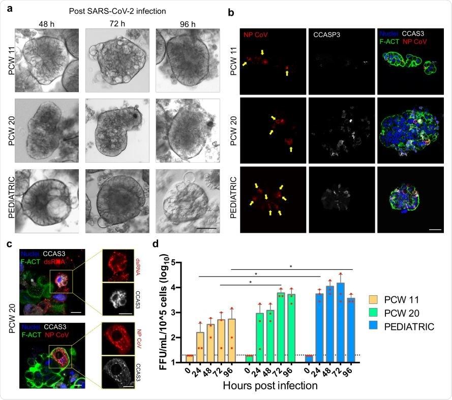 Infection SARS-CoV-2 des organoids gastriques foetaux et pédiatriques humains