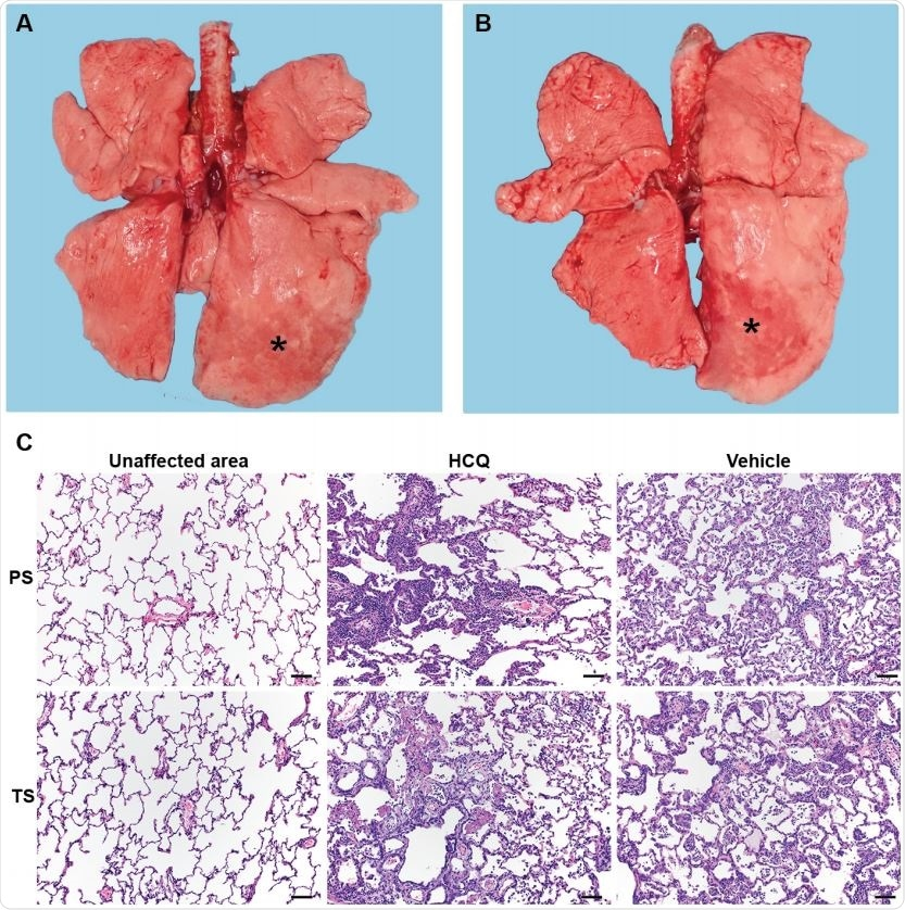 Rhesus macaque model – gross and histopathology. Macaques were infected with SARS-CoV-2 as described in the legend of Figure 2. Animals were euthanized on day 7 post368 infection for gross pathology and histopathology. (A and B) Gross pathology with consolidated lower left lung lobe and area of post-mortem-BAL in the lower right lung lobe (asterisk). (C) Hematoxylin and eosin (H&E) staining revealed multifocal, minimal to moderate, interstitial pneumonia frequently centered on terminal bronchioles. Alveolar edema and fibrin with formation of hyaline membranes was only seen in lungs with moderate changes. Multifocal perivascular infiltrates of small numbers of lymphocytes that form perivascular cuffs. The left 3panels show areas of unaffected lung tissue. Note: PS, prophylaxis; TS, treatment.