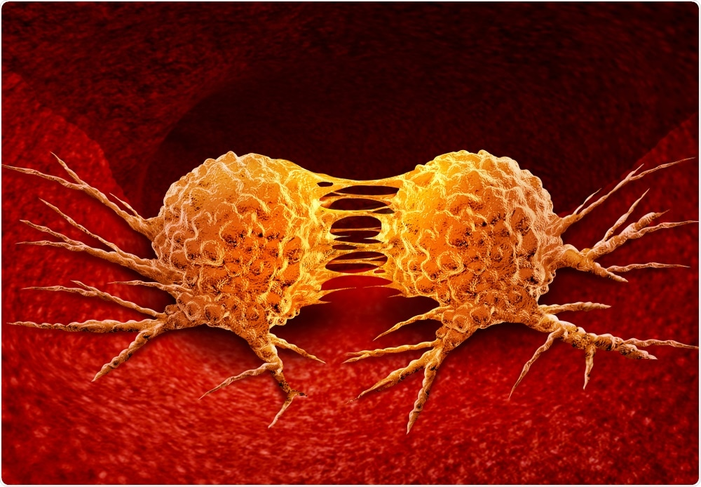 Metástasis del cáncer