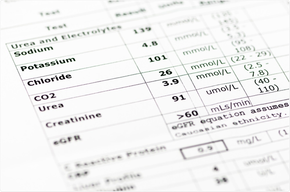 Study: Hypokalemia in Patients with COVID-19. Image Credit: Stephen Barnes / Shutterstock
