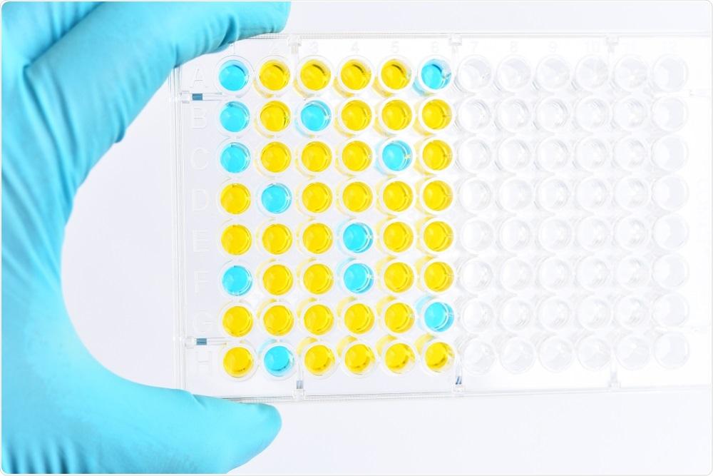 análisis Enzima-conectado del inmunosorbente o placa de ELISA, método de pruebas de la inmunología en laboratorio. Haber de imagen: Jarun Ontakrai/Shutterstock