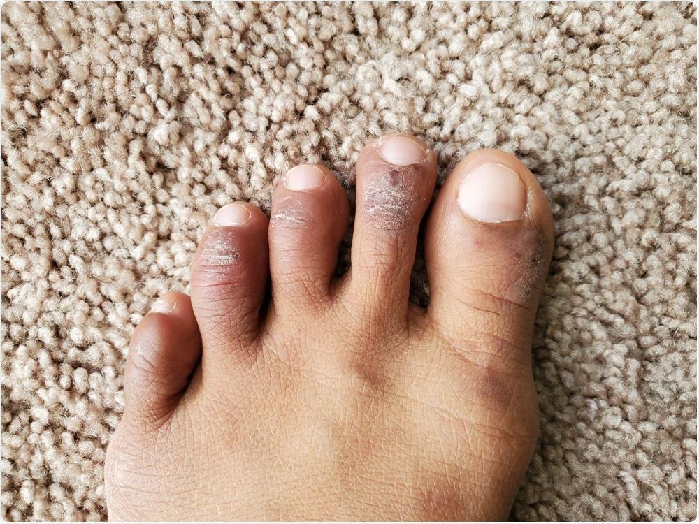 Geloni sulle dita del piede. Credito di immagine: Ms.Giggles/Shutterstock