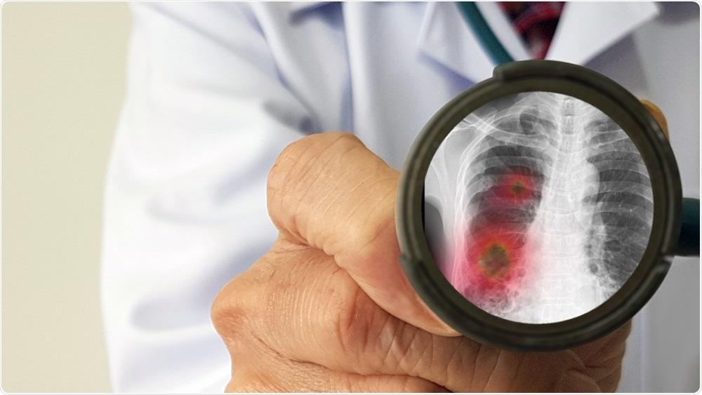 Doctor de las enfermedades infecciosas