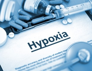 Silent hypoxia and its role in COVID-19 detection