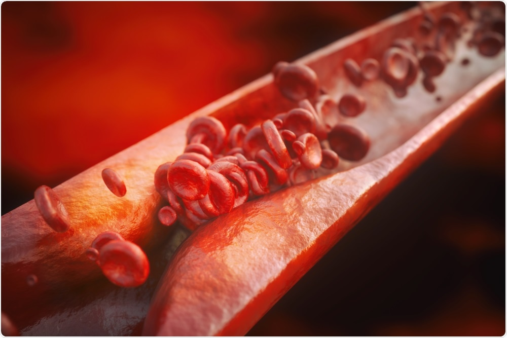 Study: Directed remodeling of the mouse gut microbiome inhibits the development of atherosclerosis. Image Credit: Crevis / Shutterstock