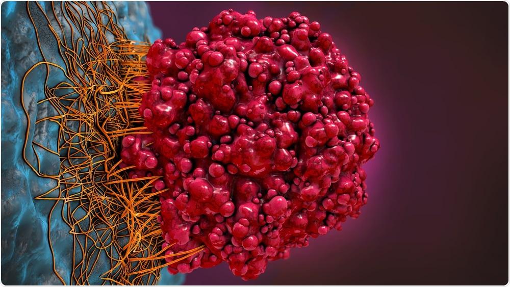Tumor Cells