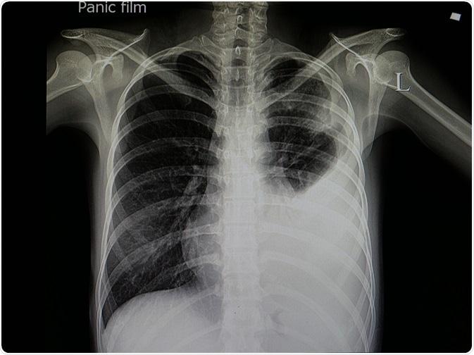 Pneumonie infectieuse