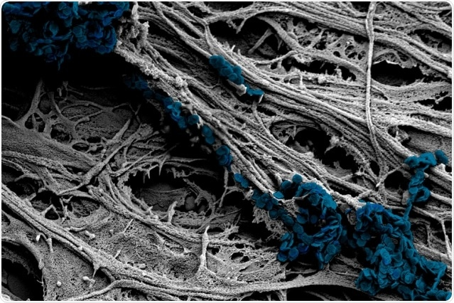 A new method for mechanical stimulation of neural cells