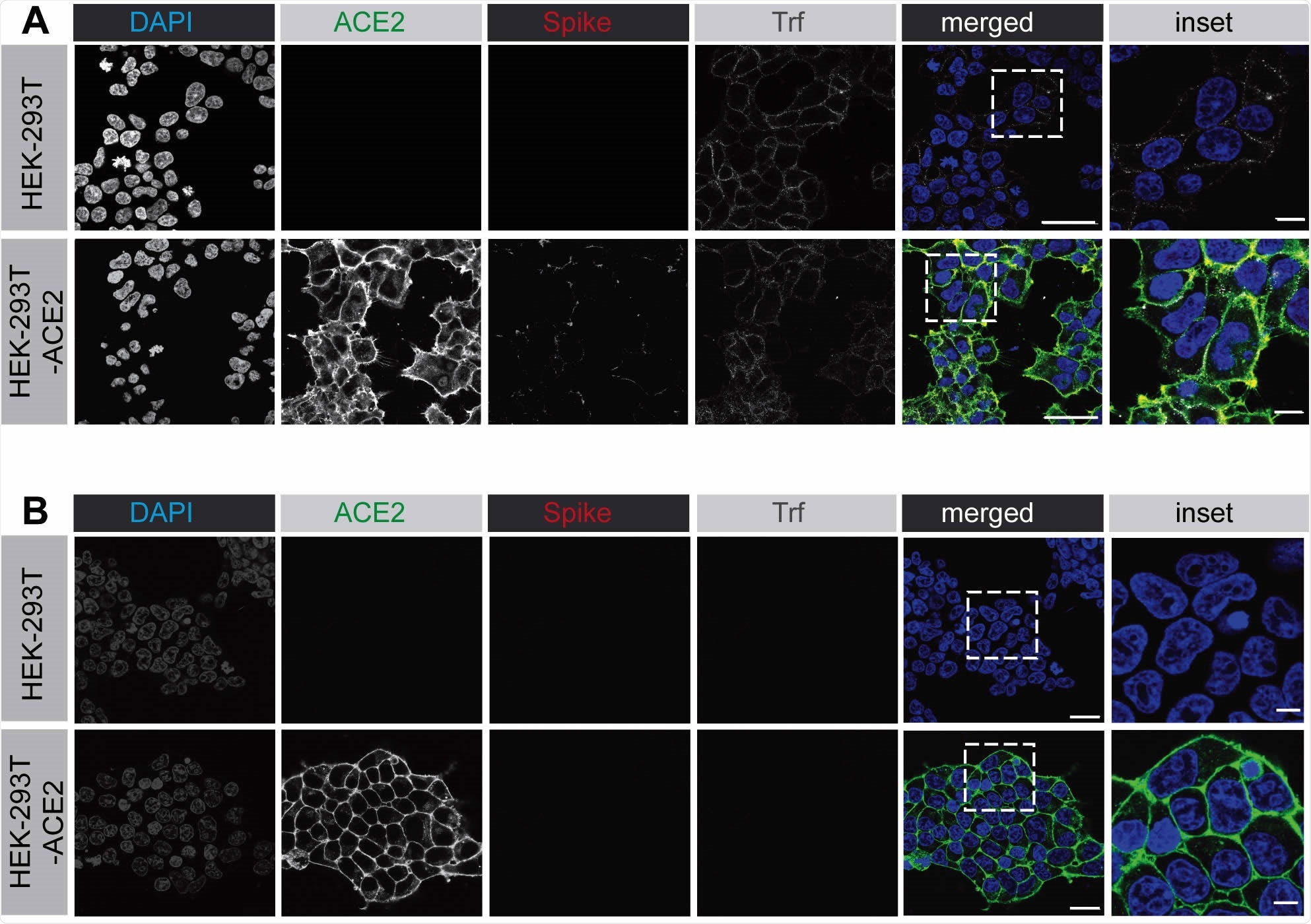 SARS-CoV-2 spike protein binds to the surface of HEK-293 cells expressing ACE2. (A) HEK-293 cells, wild-type (top row of images) or stably expressing ACE2 (bottom row of images) were incubated with purified, His6-tagged spike protein and with alexa-647 labelled transferrin for 30 min at 4°C. Following PBS wash, the cells were fixed and stained with DAPI to reveal nuclei, with an antibody selectively recognizing ACE2, and with an antibody recognizing the His6 epitope tag of the spike protein. Scale bars = 40 µm for the low mag images and 10 µm for the higher mag inset of the composite. (B) Experiment performed as in A except that the HEK-293 cells were briefly acid washed prior to fixation. Scale bars = 40 µm for the low mag images and 10 µm for the higher mag inset of the composite.