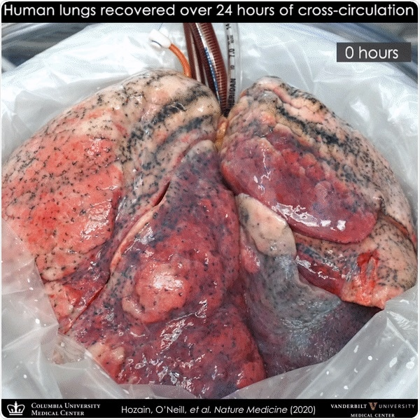 Video showing the sequence of lung recovery on cross-circulation system.