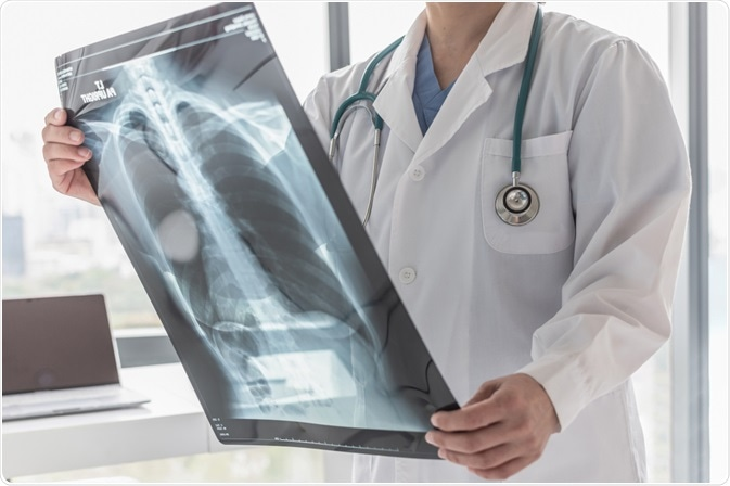 Cardiologist with X-Ray